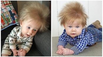 Cậu bé 5 tháng tuổi sở hữu mái tóc 'điện giật' bẩm sinh