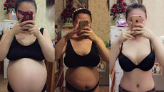 Cắt phăng 2 tảng mỡ bụng để giảm cân có nguy hiểm?