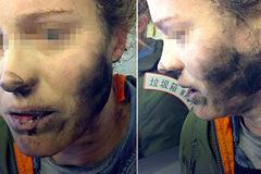 Bị bỏng nặng vì tai nghe phát nổ giữa chuyến bay
