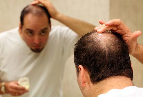 rối loạn cương dương, thuốc trị rụng tóc, thuốc mọc tóc, liệt dương