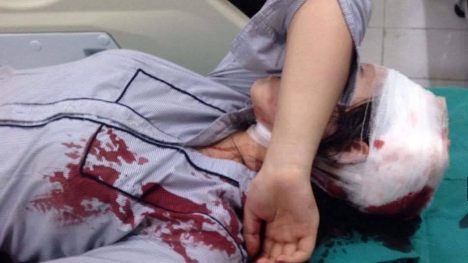 Vừa tan học nữ sinh bị đánh đập dã man ngay cổng trường