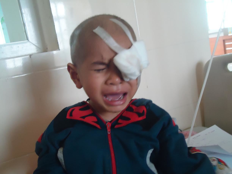 Tiếng khóc xé lòng của bé trai bị u hốc mắt