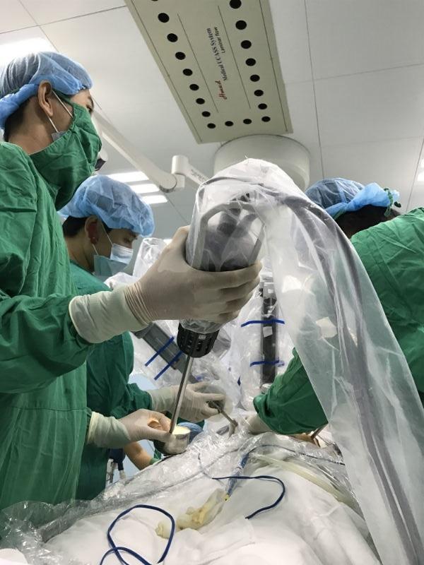 ung thư dạ dày, Robot, phẫu thuật, Robot phẫu thuật, Bệnh viện Bình Dân, TP.HCM