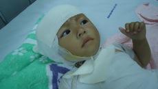 Xót xa bé gái 21 tháng tuổi đau đớn vì bỏng xăng