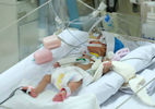 Phẫu thuật tim cứu trẻ sinh non 850 gram bé bằng bàn tay bác sĩ
