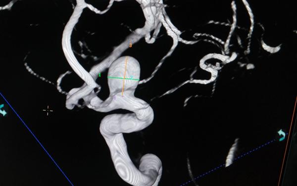 Đau đỉnh đầu nhiều năm, mạch não có thể phình to sắp vỡ