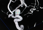 Đau đầu nhiều tháng, phát hiện khối u to bằng quả trứng trong não - ảnh 6