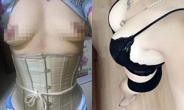 Cô gái lột xác với vòng eo 54 sau cắt mỡ, nâng ngực