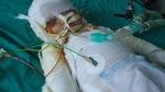 Bị bỏng bếp lửa, bé gái 7 tháng tuổi nguy kịch cầu cứu