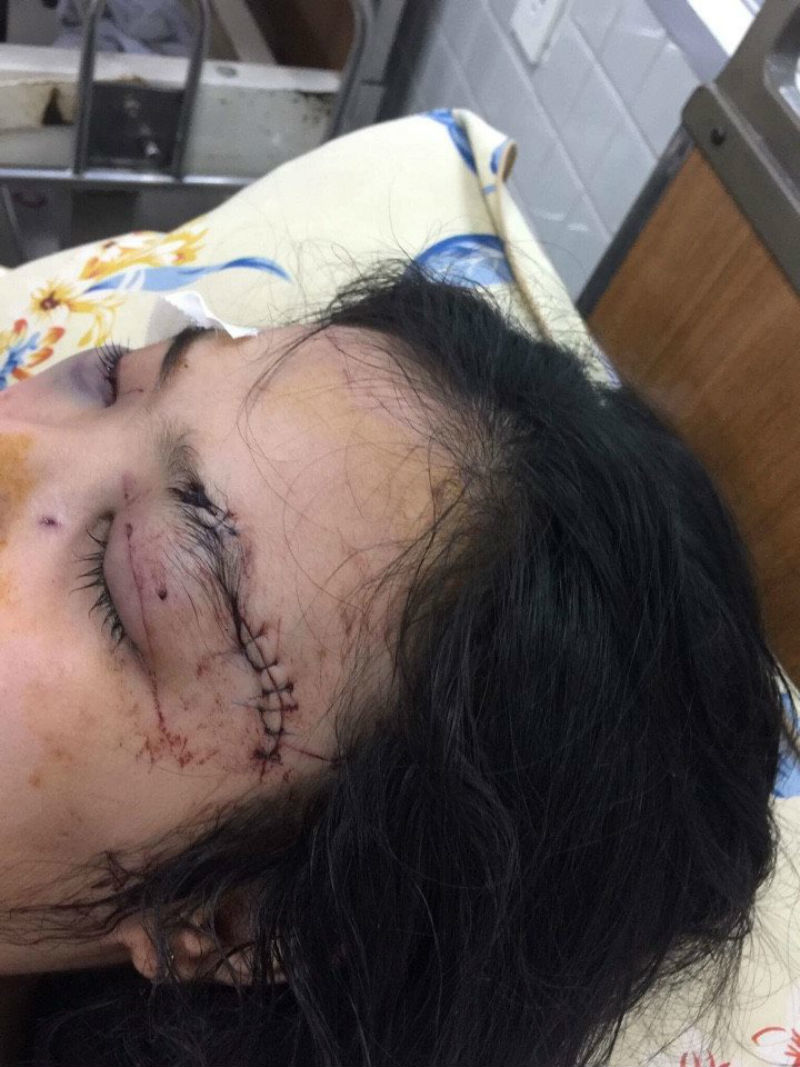Công an thông tin vụ 'truy sát' thiếu nữ 16 tuổi ở Sài Gòn