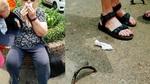 TPHCM yêu cầu bồi thường vụ du khách ngã vỡ mặt vì 'bẫy' trên phố