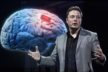 Não người ghép với máy tính: Ngày tàn của smartphone sắp đến