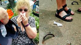 Bồi thường 1.000 USD vụ du khách ngã vỡ mặt vì 'bẫy' trên phố