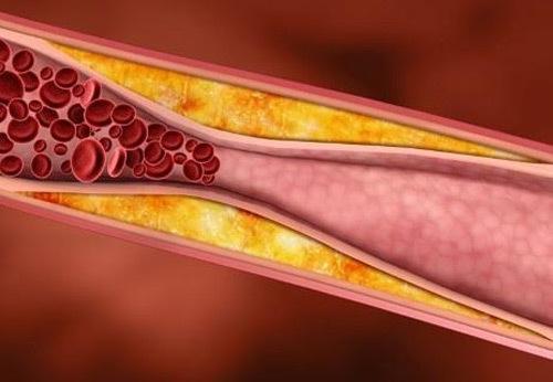 Hạn chế biến cố do xơ vữa động mạch cách nào?