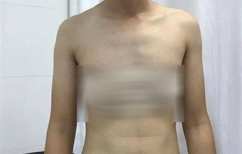 phẫu thuật chuyển giới, chuyển giới, lưỡng giới, bệnh viện Bình Dân, BS Mai Bá Tiến Dũng