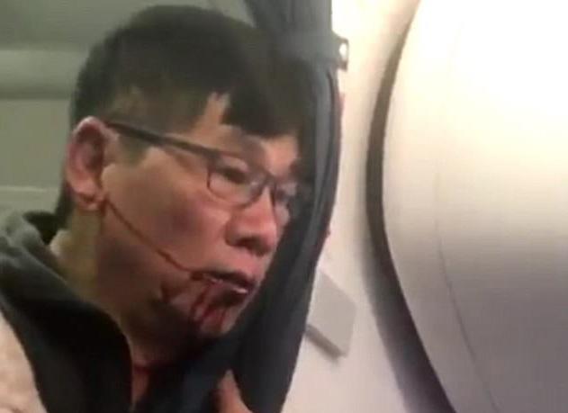 bác sĩ bị lôi khỏi máy bay, khách gốc Việt bị lôi khỏi máy bay, United Airlines, David Dao
