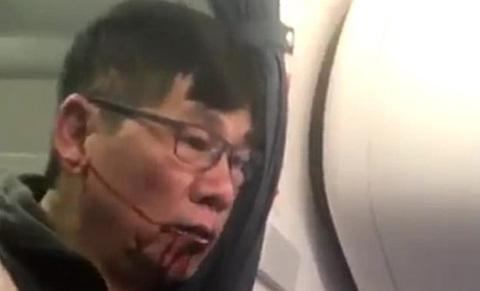 bác sĩ bị lôi khỏi máy bay
