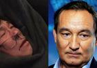 United Airlines thừa nhận bác sĩ gốc Việt bị ngược đãi