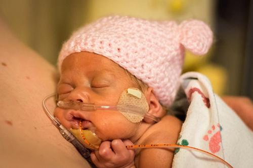 Chăm sóc trẻ sinh non: Cần cả yêu thương lẫn hiểu biết