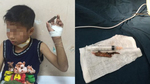 Bé 9 tuổi bị cành cây đâm xuyên cổ