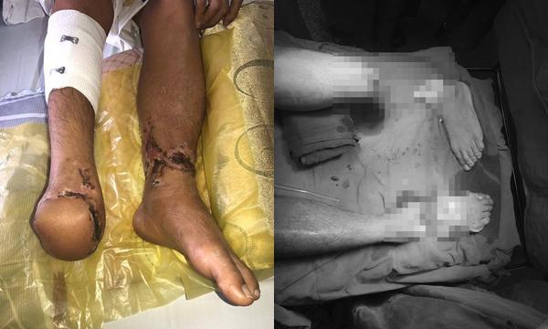 Hy hữu: Nối bàn chân thanh niên bị đứt rời 18 tiếng