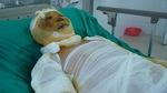 Vợ suy tim, chồng tai nạn bỏng ga nguy kịch cầu cứu