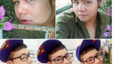 Diễn viên Nhật ký Vàng Anh tung ảnh xấu xí khi bị nghi phẫu thuật thẩm mỹ