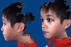 Tự kỷ: Nâng cao nhận thức vì thế hệ tương lai