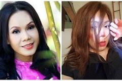 Việt Hương đăng ảnh bầm dập mặt khiến fan lo lắng