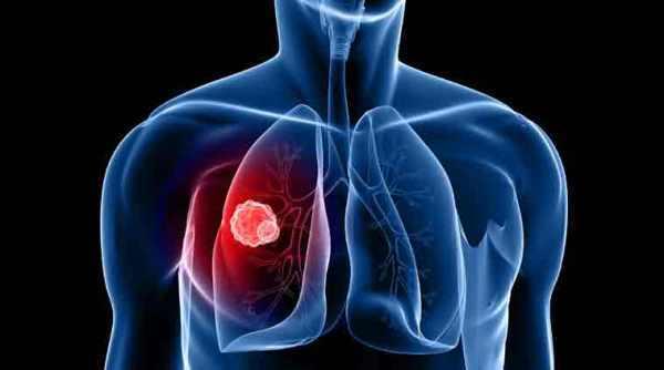 Căn bệnh ung thư ám ảnh, 1 phút có 3 người chết