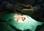 Sinh viên Trung Quốc đổ xô đi phẫu thuật thẩm mỹ để xin việc