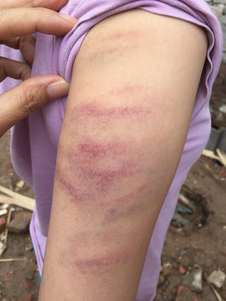Tạm đình chỉ cô giáo đánh học sinh bầm tím vì làm thiếu bài tập