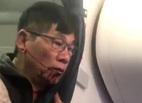 United Airlines bồi thường cho bác sĩ Dao