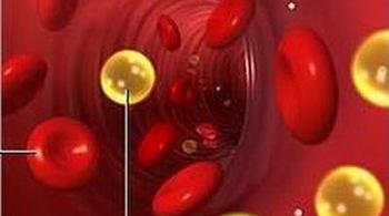 Cách ngăn ngừa và trị rối loạn lipid máu