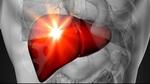 Nóng bức - làm gì để giải nhiệt cho gan?