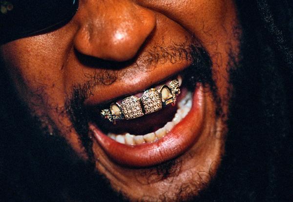 Nhà giàu đeo dây chuyền 15kg vàng, bọc răng kim cương 1,1 tỷ