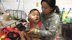 Nghẹn lòng cậu bé ung thư bị biến dạng khuôn mặt