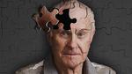 3 nguyên nhân gây suy giảm trí nhớ