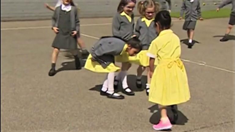 Cô bé 7 tuổi hạnh phúc khoe chân giả với bạn bè