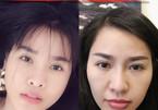 Quế Vân công khai ảnh phẫu thuật toàn bộ gương mặt ở Hàn Quốc