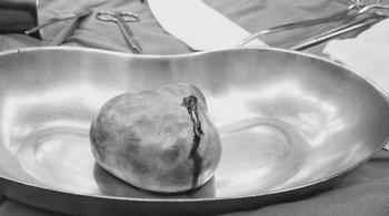 Khối u quái bì trong buồng trứng khiến thiếu nữ 18 bị viêm não