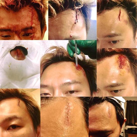 Nam ca sĩ hải ngoại bị ngã vỡ trán, phải khâu 8 mũi