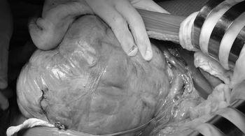 Xử trí bất ngờ với 2 quả thận bị khối u chiếm gần hết