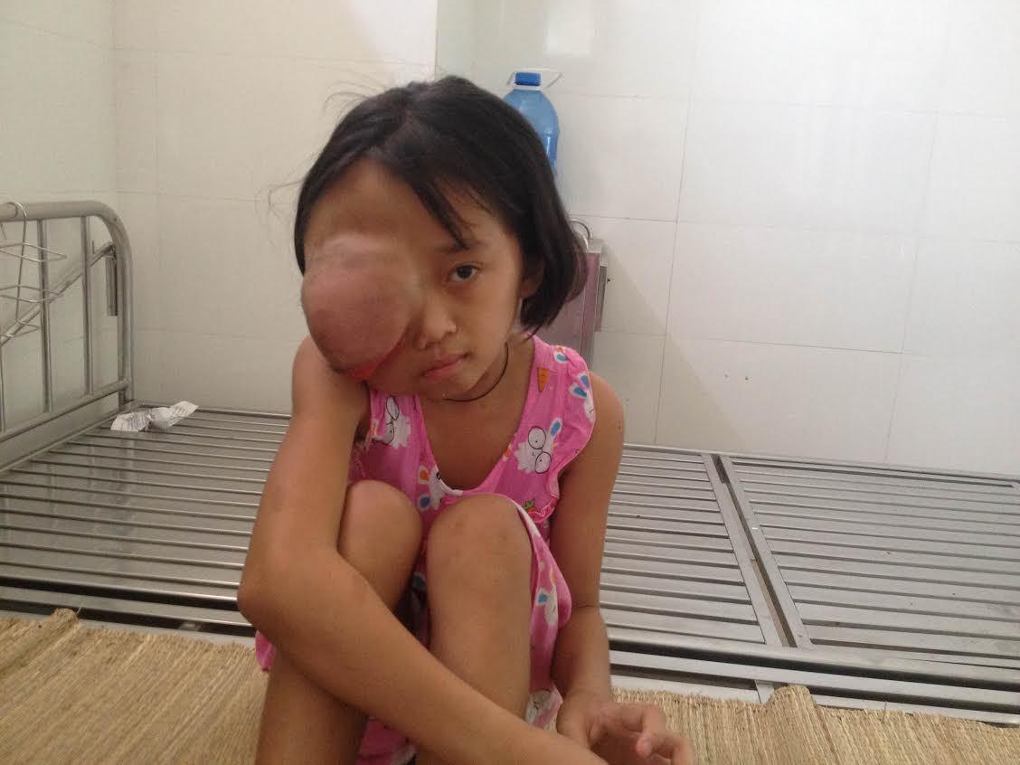 Khao khát đến trường của bé gái mang khối u khổng lồ trên mặt