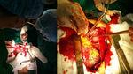 Hy hữu: Người bệnh không có vết thương hở nhưng lại vỡ tim