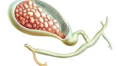4 triệu chứng phố biến của bệnh sỏi mật