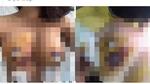 Bộ Y tế lên tiếng vụ cô gái có dấu hiệu hoại tử sau nâng ngực