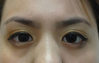 Cô gái Mỹ sắp mù về Việt Nam mổ mắt