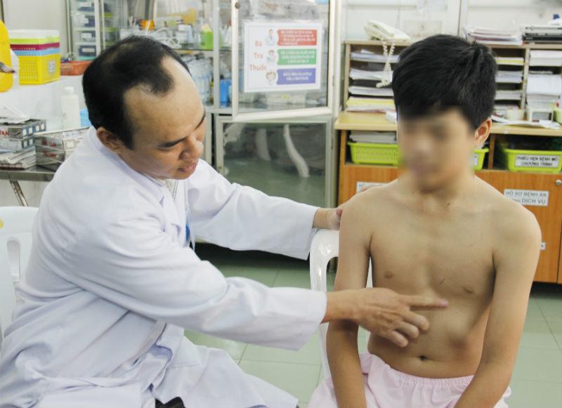 Nguy hiểm khôn lường bệnh lõm ngực bẩm sinh ở trẻ nhỏ
