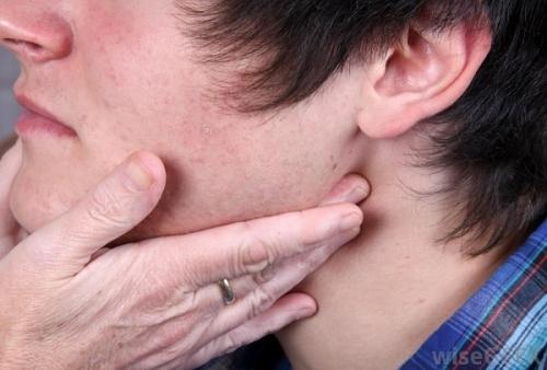 ung thư,ung thư vòm họng